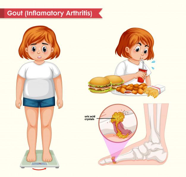 Công dụng của nước kangen với bệnh nhân bị gout - 1