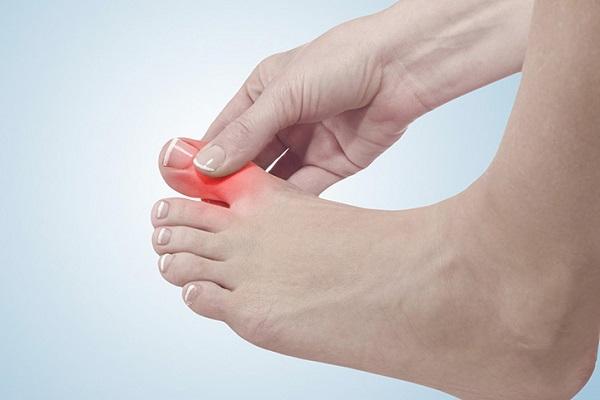 Công dụng của nước kangen với bệnh nhân bị gout