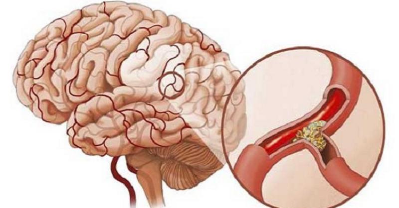 Nước ion kiềm có giúp phòng chống đột quỵ không